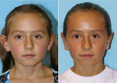 Dr. Balikian's Otoplasty Gallery - Patient 2167520 - Image 1