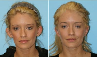 Dr. Balikian's Otoplasty Gallery - Patient 2167523 - Image 1