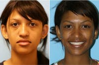 Dr. Balikian's Otoplasty Gallery - Patient 2167525 - Image 1