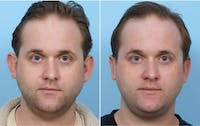 Dr. Balikian's Otoplasty Gallery - Patient 2167527 - Image 1