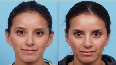 Dr. Balikian's Otoplasty Gallery - Patient 2167529 - Image 1