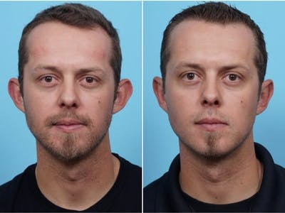 Dr. Balikian's Otoplasty Gallery - Patient 2167531 - Image 1
