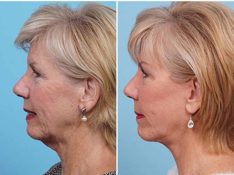 Dr. Balikian's Fat Transfer Gallery - Patient 2167544 - Image 2
