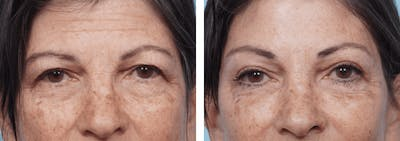Dr. Balikian's Brow Lift Gallery - Patient 2167546 - Image 1