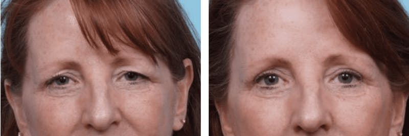 Dr. Balikian's Brow Lift Gallery - Patient 2167548 - Image 1