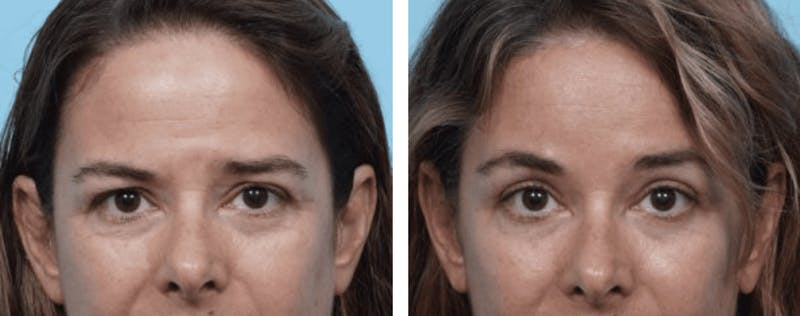 Dr. Balikian's Brow Lift Gallery - Patient 2167550 - Image 1