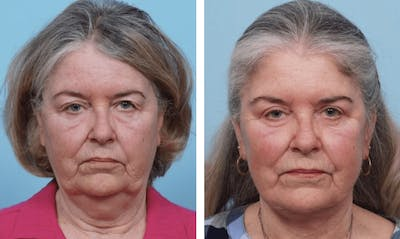 Dr. Balikian's Brow Lift Gallery - Patient 2167552 - Image 1
