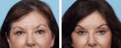Dr. Balikian's Brow Lift Gallery - Patient 2167554 - Image 1