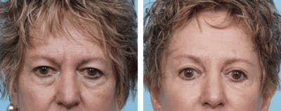 Dr. Balikian's Brow Lift Gallery - Patient 2167557 - Image 1