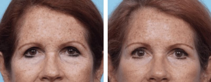 Dr. Balikian's Brow Lift Gallery - Patient 2167559 - Image 1