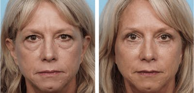 Dr. Balikian's Brow Lift Gallery - Patient 2167561 - Image 1