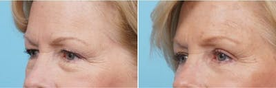 Dr. Balikian's Brow Lift Gallery - Patient 2167573 - Image 1