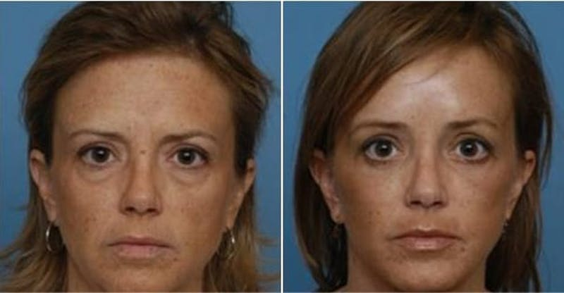 Dr. Balikian's Brow Lift Gallery - Patient 2167575 - Image 1