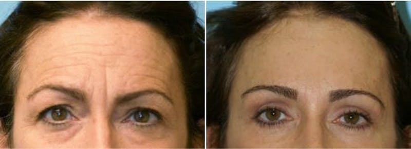 Dr. Balikian's Brow Lift Gallery - Patient 2167577 - Image 1