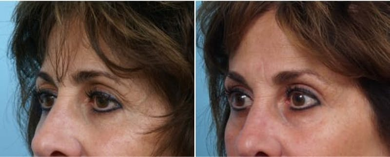 Dr. Balikian's Brow Lift Gallery - Patient 2167599 - Image 1