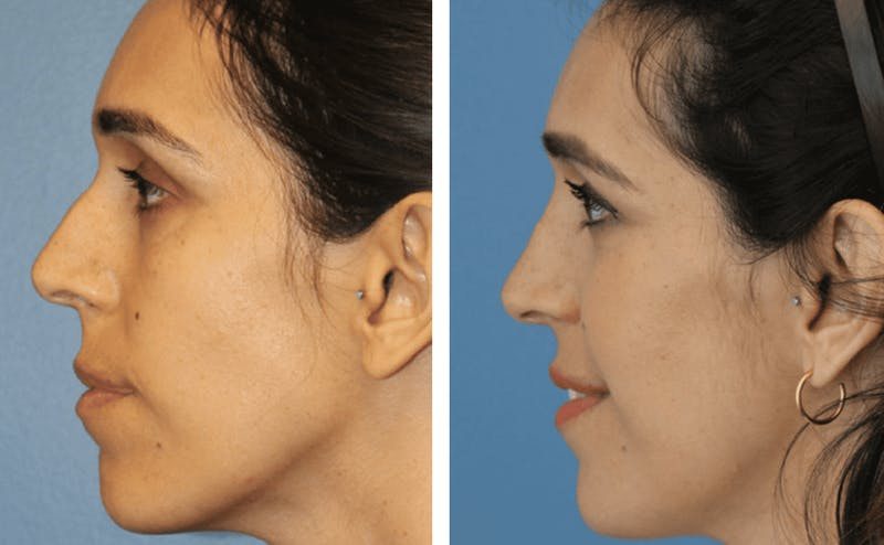 Dr. Balikian's Rhinoplasty Gallery - Patient 2167607 - Image 1