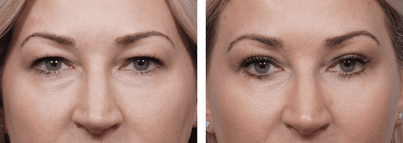 Dr. Balikian's Blepharoplasty Gallery - Patient 2167698 - Image 1