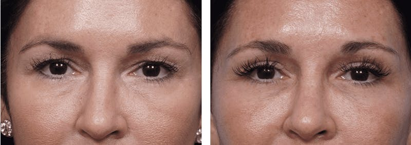 Dr. Balikian's Blepharoplasty Gallery - Patient 2167700 - Image 1