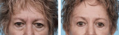 Dr. Balikian's Blepharoplasty Gallery - Patient 2167703 - Image 1