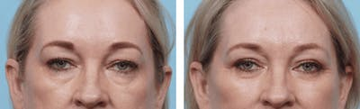Dr. Balikian's Blepharoplasty Gallery - Patient 2167705 - Image 1