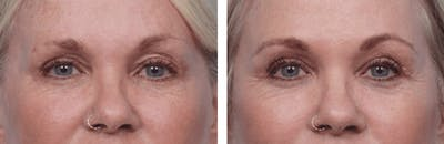 Dr. Balikian's Blepharoplasty Gallery - Patient 2167708 - Image 1