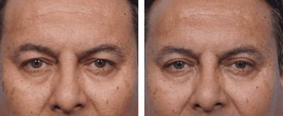 Dr. Balikian's Blepharoplasty Gallery - Patient 2167717 - Image 1