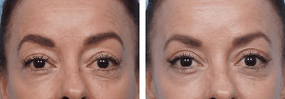 Dr. Balikian's Blepharoplasty Gallery - Patient 2167719 - Image 1