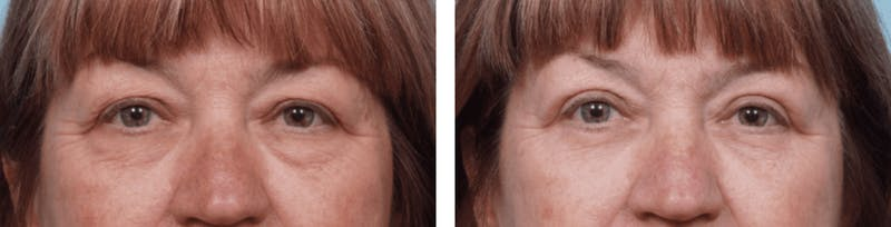Dr. Balikian's Blepharoplasty Gallery - Patient 2167721 - Image 1