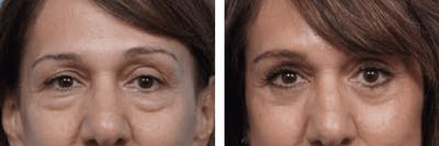 Dr. Balikian's Blepharoplasty Gallery - Patient 2167723 - Image 1