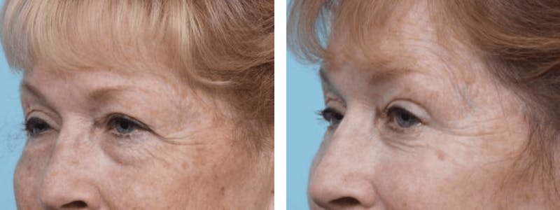 Dr. Balikian's Blepharoplasty Gallery - Patient 2167726 - Image 1
