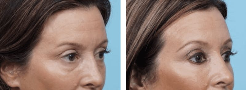 Dr. Balikian's Blepharoplasty Gallery - Patient 2167729 - Image 1