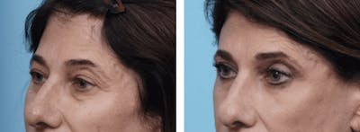 Dr. Balikian's Blepharoplasty Gallery - Patient 2167731 - Image 1