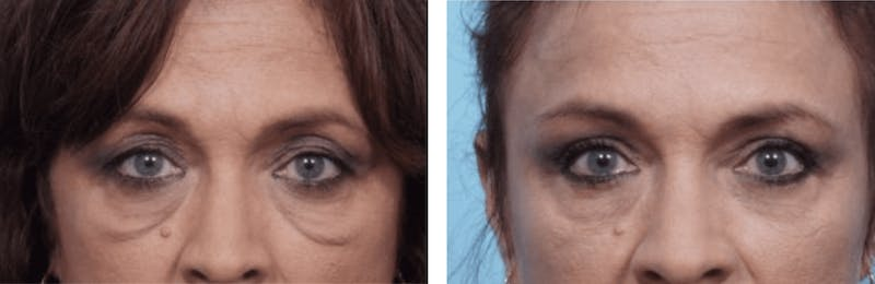 Dr. Balikian's Blepharoplasty Gallery - Patient 2167733 - Image 1