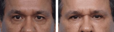 Dr. Balikian's Blepharoplasty Gallery - Patient 2167735 - Image 1