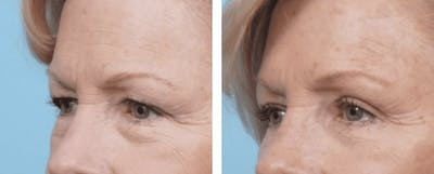 Dr. Balikian's Blepharoplasty Gallery - Patient 2167738 - Image 1