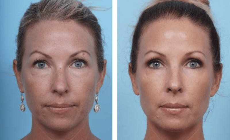 Dr. Balikian's Blepharoplasty Gallery - Patient 2167740 - Image 1