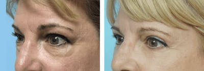 Dr. Balikian's Blepharoplasty Gallery - Patient 2167742 - Image 1