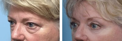 Dr. Balikian's Blepharoplasty Gallery - Patient 2167744 - Image 1