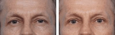 Dr. Balikian's Blepharoplasty Gallery - Patient 2167746 - Image 1