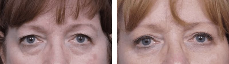 Dr. Balikian's Blepharoplasty Gallery - Patient 2167749 - Image 1
