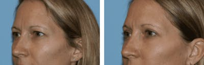 Dr. Balikian's Blepharoplasty Gallery - Patient 2167755 - Image 1