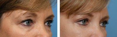 Dr. Balikian's Blepharoplasty Gallery - Patient 2167759 - Image 1