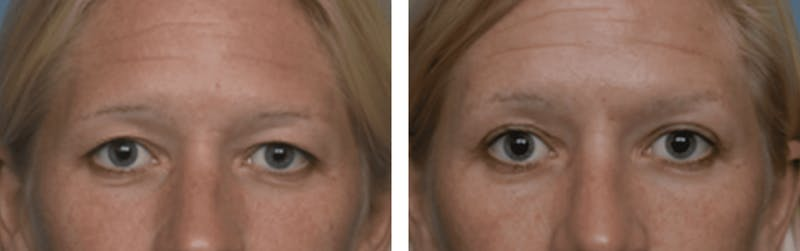 Dr. Balikian's Blepharoplasty Gallery - Patient 2167761 - Image 1