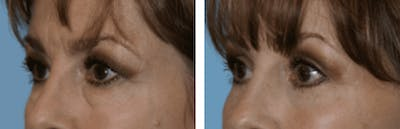Dr. Balikian's Blepharoplasty Gallery - Patient 2167763 - Image 1
