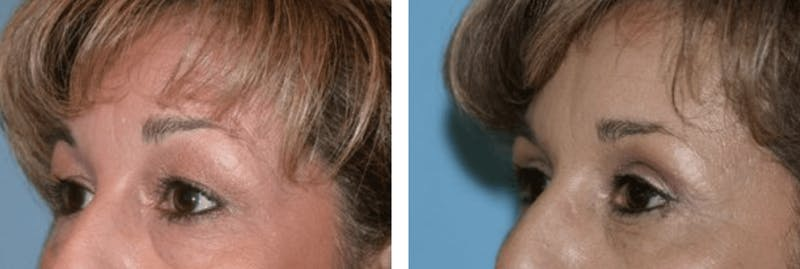 Dr. Balikian's Blepharoplasty Gallery - Patient 2167765 - Image 1