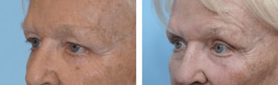 Dr. Balikian's Blepharoplasty Gallery - Patient 2167768 - Image 1