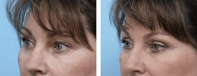 Dr. Balikian's Blepharoplasty Gallery - Patient 2167771 - Image 1