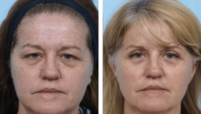 Dr. Balikian's Blepharoplasty Gallery - Patient 2167774 - Image 1