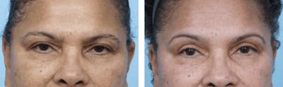 Dr. Balikian's Blepharoplasty Gallery - Patient 2167776 - Image 1