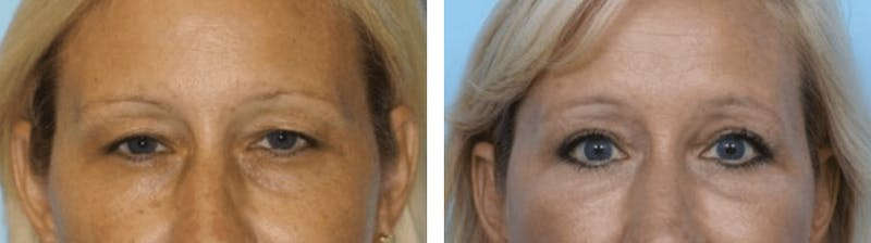 Dr. Balikian's Blepharoplasty Gallery - Patient 2167778 - Image 1